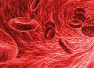 deficit di sangue