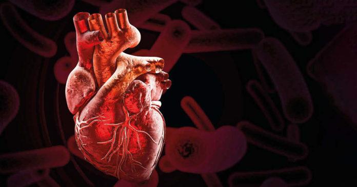 miocarditi virali